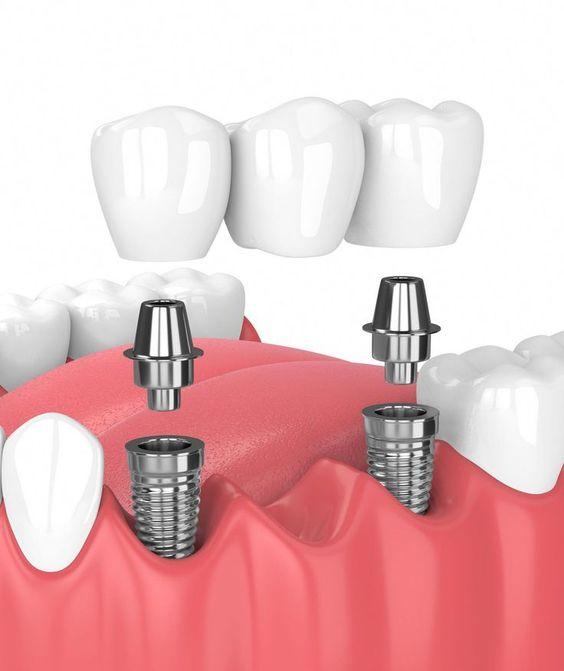 Best Dentist in Dhaka -Dental Implants