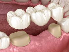 Best Dentist in dhaka-Dental Bridge