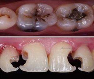 Best Dentist in Dhaka-cavities