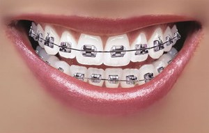 Best Dentist in Dhaka-Orthodontics