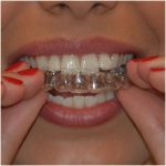 Best Dentist in Dhaka-cosmetic Dentistry
