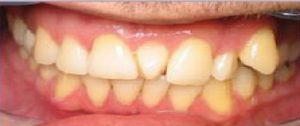 Best Dentist in dhaka-Dental Bridge