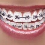 Best Dentist in Dhaka-Orthodontics