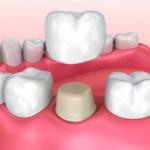 Best Dentist in Dhaka-Cap Crown